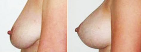 Операция по увеличению груди опасен