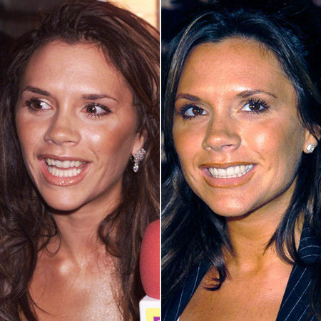 красивые зубы до и после