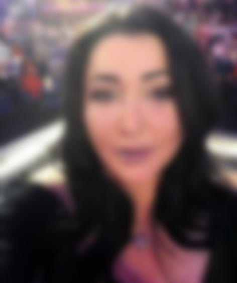 Эстрадная певица Лолита обновила лицо